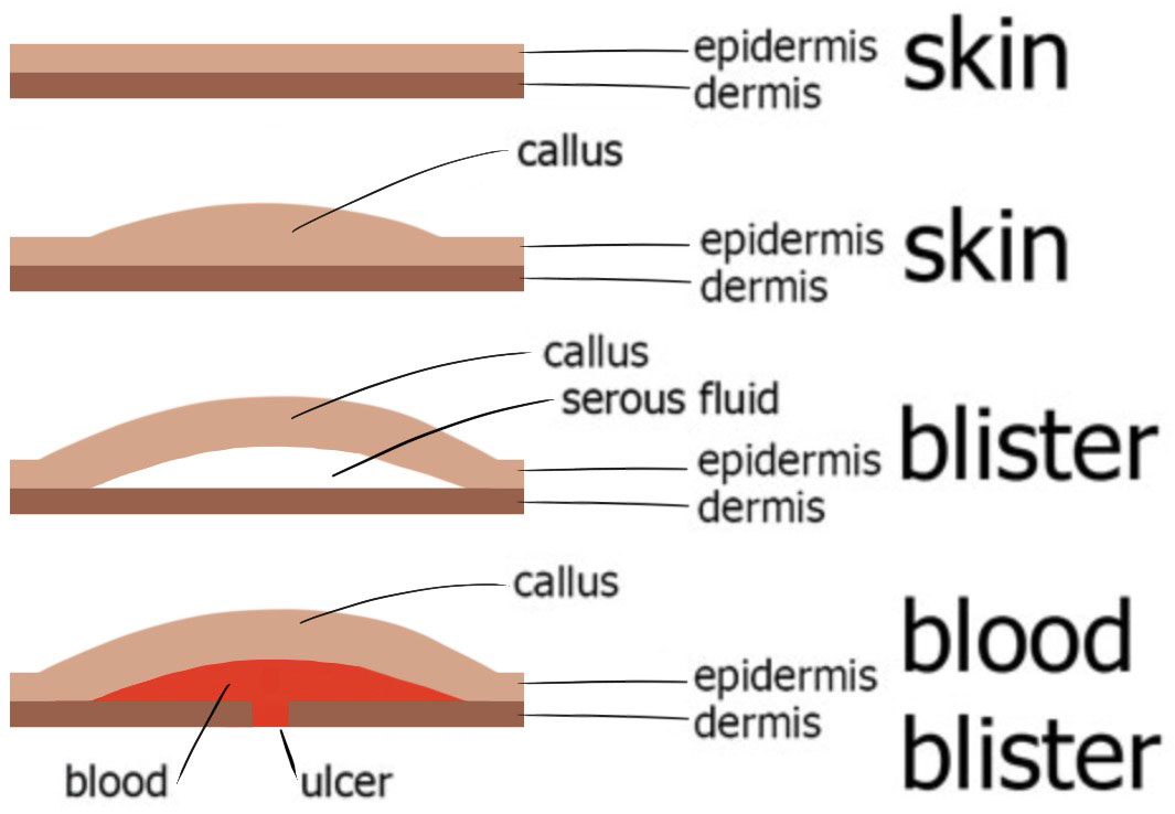 How I Do It  Callus Debridement and the Diabetic Foot